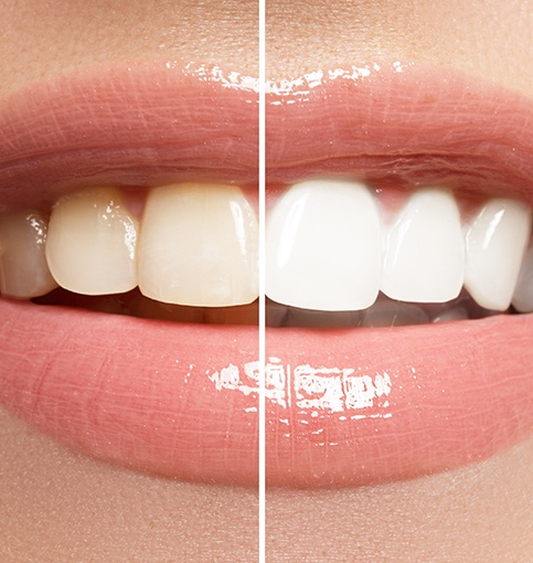 Smile before and after KoR teeth whitening