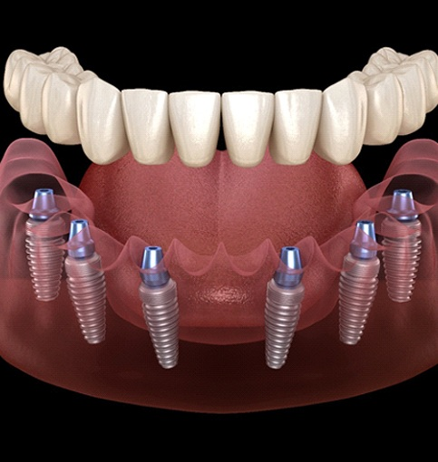 Illustration of lower denture supported by six dental implants