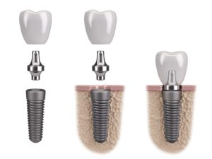 Illustration of three dental implants in Plano against white background